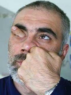 Funny photos - Crossing Nose
