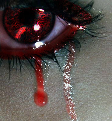 Bloody sad