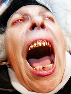 Funny photos - Golden teeth
