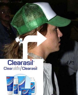 Celebrity photos - Clearasil