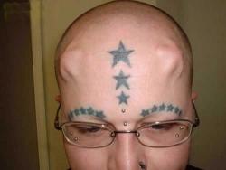 Funny photos - Strange implant