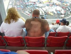 Funny photos - Hairy fan