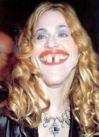 Modonna with rabbit teeth